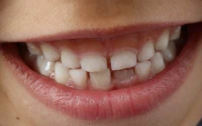 How to repair a broken tooth?